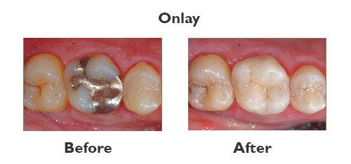 onlay before & after
